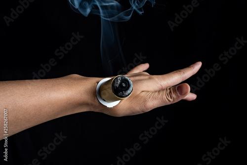 Fotografie, Tablou  Chinese medicine moxibustion treatment