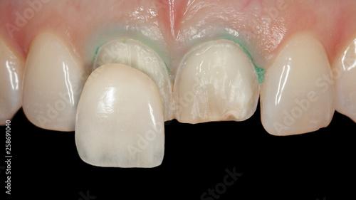 Photo  Zahn Veneer aus Keramik auf den oberen großen Schneidezähnen Behandlungsablauf