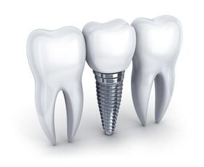 Fototapeta na wymiar Dental implant and tooth