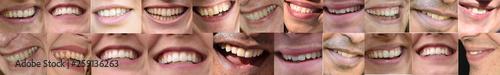Fotografie, Obraz  lachen, Mund und Lippen, Zähne