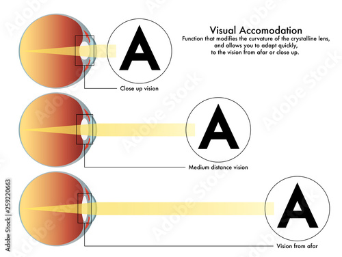 A medical diagram of visual accommodation, the function that modifies the curvature of the crystalline lens, and allows you to adapt quickly to the vision from afar or close up Canvas Print
