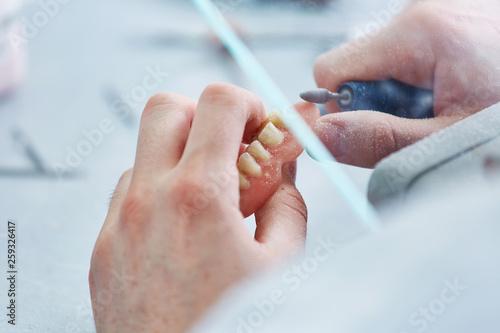 Anfertigung einer Zahnprothese Wallpaper Mural