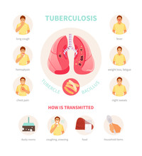 Symptoms And Ways Of Transmission Of Tuberculosis