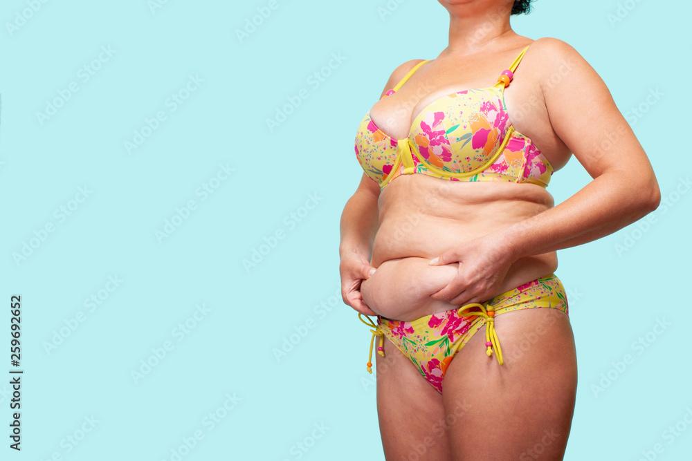 Valokuva Woman holding Skin of the skin, Cellulite on female Body