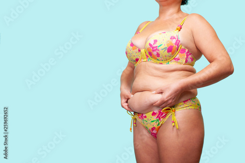 Fotografering  Woman holding Skin of the skin, Cellulite on female Body