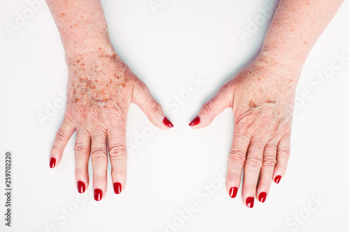Fotografia, Obraz  flabby arms in wrinkles and age spots