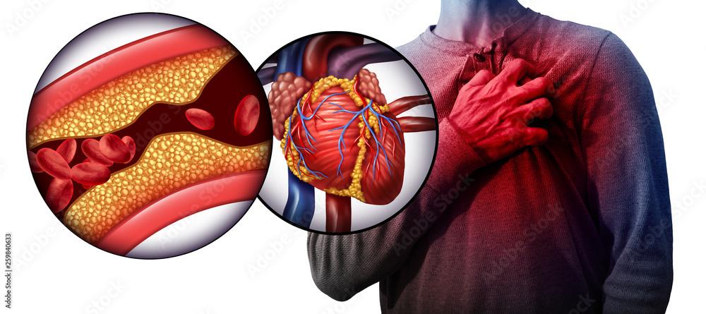 Fototapety, obrazy: Myocardial Infarction