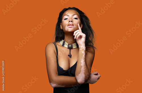 Beautiful African Girl In Studio With Skin Problems Vitiligo Studio Shooting Buy This Stock Photo And Explore Similar Images At Adobe Stock Adobe Stock