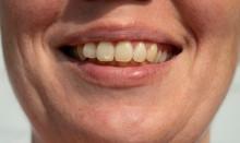 Tooth Spot