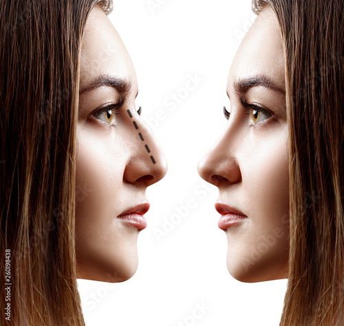 Young woman in profile before and after rhinoplasty  - Buy this