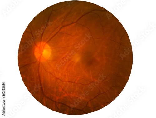 Cuadros en Lienzo  Retina of diabetes , diabates retinopathy,photo Medical Retina Abnormal isolated on white background