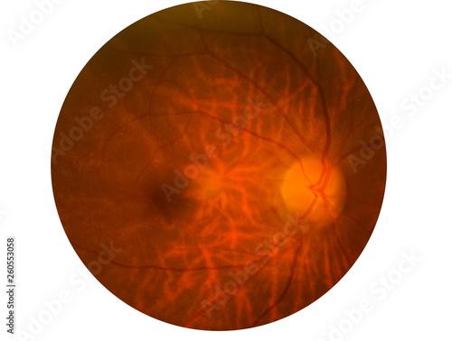 Fotomural Retina of diabetes , diabates retinopathy,photo Medical Retina Abnormal isolated on white background