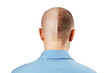 Portrait Man before and after hair loss, transplant on isolated white background. Split personality, Back view