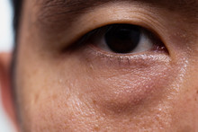 Ptosis (Droopy Eyelid) In Asia...
