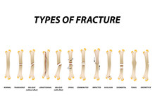 Types Of Fracture. Fracture Bo...