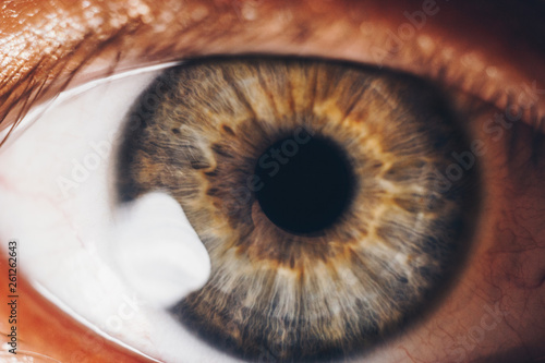 Fotobehang Macrofotografie macro eyes with bursting red blood vessels. eyeball covered with blood close up. vision problems. wide open eye.