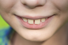 Closeup View Of Smiling Mouth ...