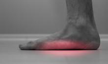 Flat Feet (pes Planus Or Fallen Arches). Close Up Of Flat Men Foot.