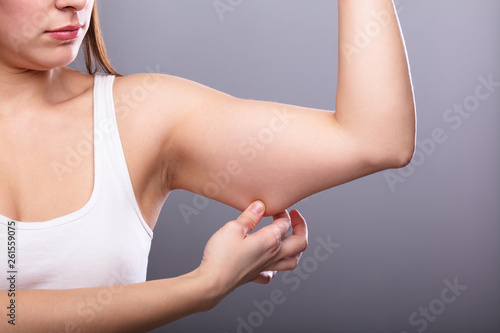 Leinwand Poster  Woman Holding Arm With Excess Fat