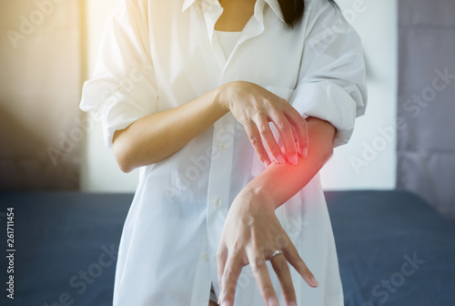 Fotografie, Obraz  Woman with rash or papule and scratchon her arm from allergies,Health allergy sk