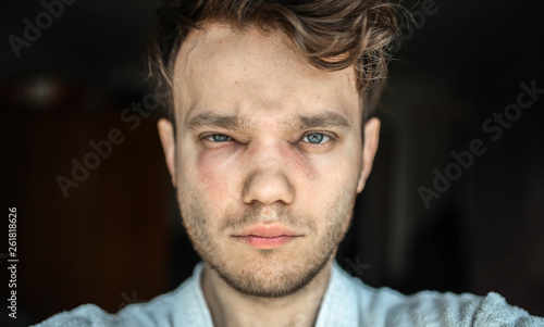 Real allergic reaction in a man face, eyes, nose Wallpaper Mural
