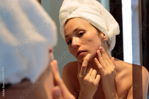 Fotografie, Obraz young woman looking her acne scars on the mirror