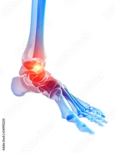 3d rendered medically accurate illustration of the ankle joint showing pain Canvas Print