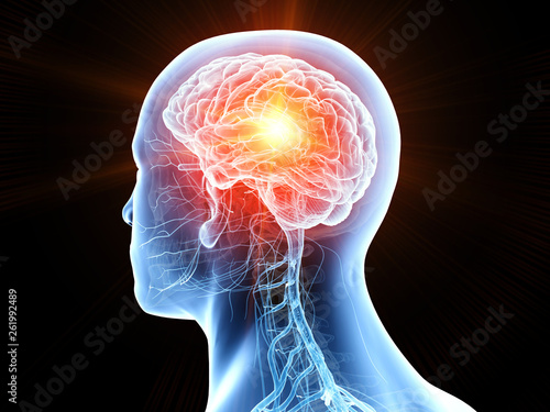 Fotografie, Obraz 3d rendered medically accurate illustration of human brain cancer