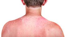 Sunburn On A Child's Back
