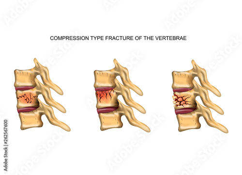 Fototapeta compression type fracture of the spine