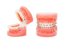 Orthodontic Model And Dentist Tool - Demonstration Teeth Model Of Varities Of Orthodontic Bracket Or Brace. Metal And Ceramic Braces On Teeth On An Artificial Jaws Closeup