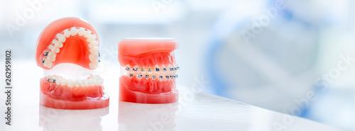 Stampa su Tela Orthodontic model and dentist tool - demonstration teeth model of varities of orthodontic bracket or brace