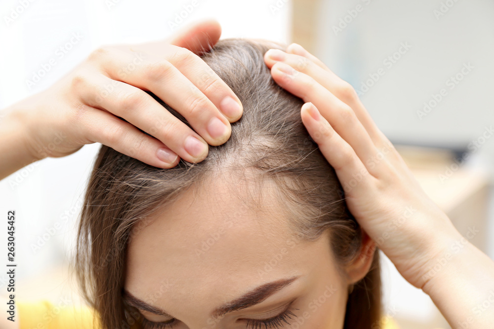 Fototapeta Young woman with hair loss problem indoors, closeup