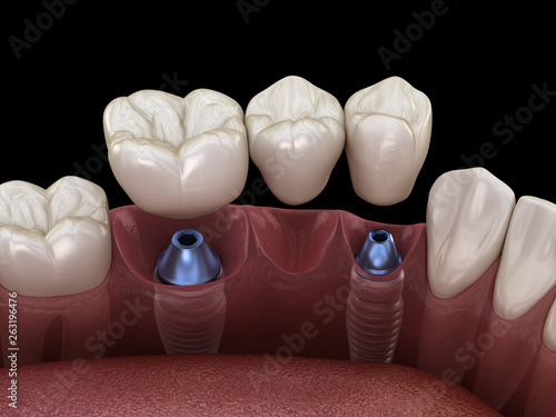 Fotografie, Obraz  Dental bridge supported by implants