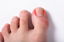 Close-up Of Sore Toe Nail