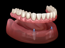 Mandibular Removable Prosthesi...
