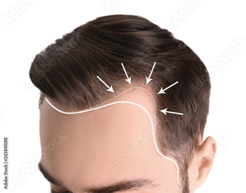 Photo Young man with hair loss problem on white background, closeup