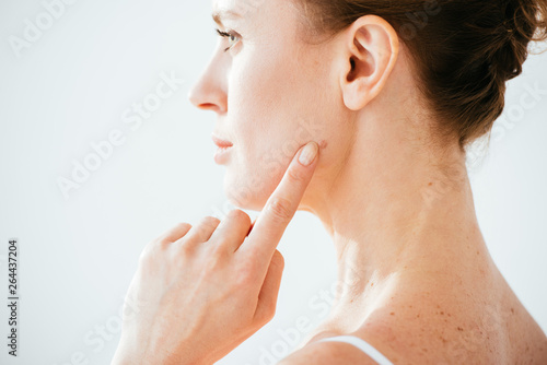 Fotografia attractive woman pointing with finger at mole on face isolated on white