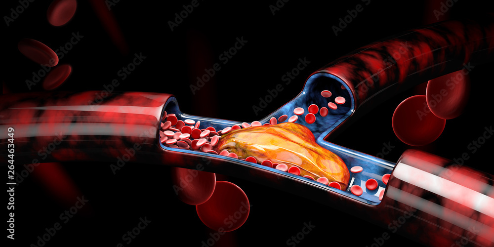 Fototapety, obrazy: 3d Illustration of Deep Vein Thrombosis or Blood Clots, Embolism.
