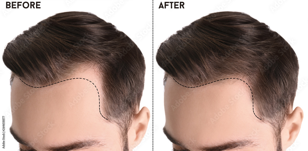 Fototapety, obrazy: Young man before and after hair loss treatment against white background, closeup