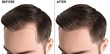 Young man before and after hair loss treatment against white background, closeup