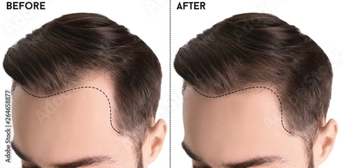 Photo  Young man before and after hair loss treatment against white background, closeup