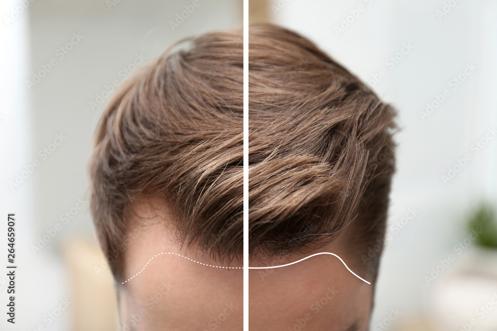 Fototapeta Young man before and after hair loss treatment against blurred background, closeup