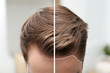 Young man before and after hair loss treatment against blurred background, closeup