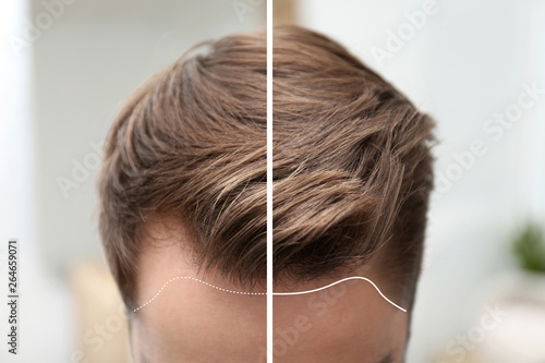 Obraz Young man before and after hair loss treatment against blurred background, closeup - fototapety do salonu