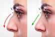 Leinwandbild Motiv Woman's Nose Before And After Plastic Surgery