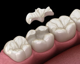 Fototapeta Panels - Inlay ceramic crown fixation over tooth. Medically accurate 3D illustration of human teeth treatment