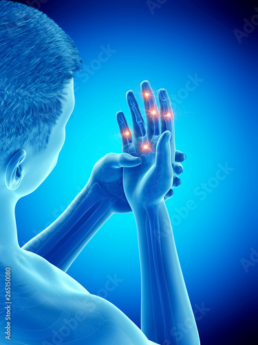 Photo 3d rendered medically accurate illustration of painful finger joints