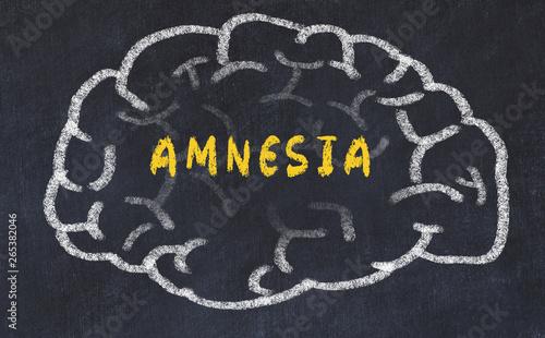 Chalk drawing of human brain with inscription amnesia Canvas Print