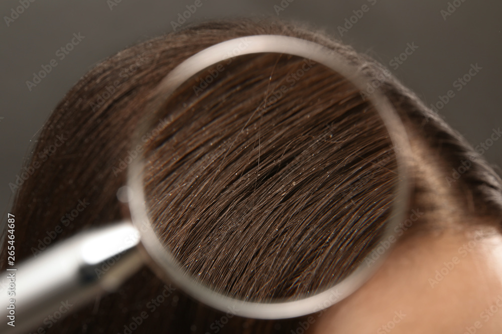 Fototapeta Closeup of woman with dandruff in her hair, view through magnifying glass